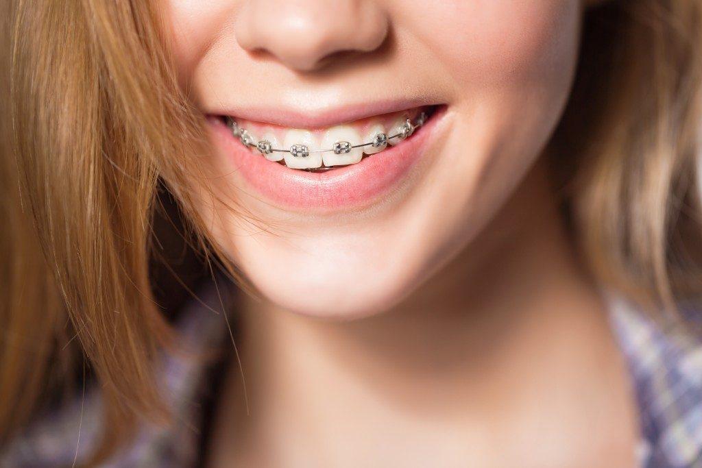 close up shot of a teen weraing braces