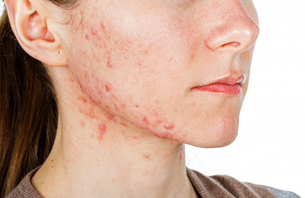 acne on the jaw