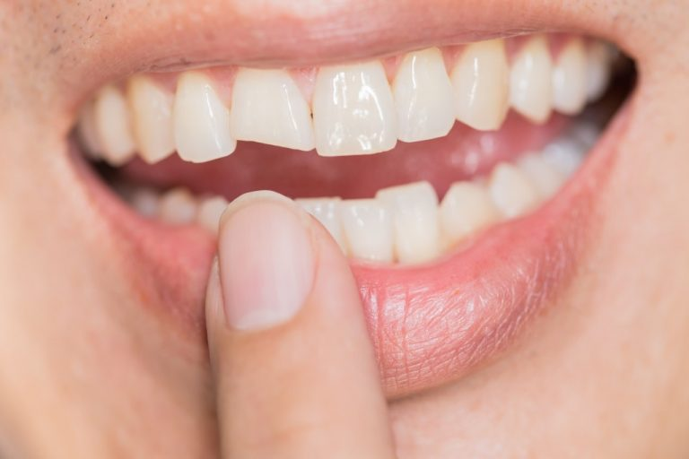 person with chipped tooth