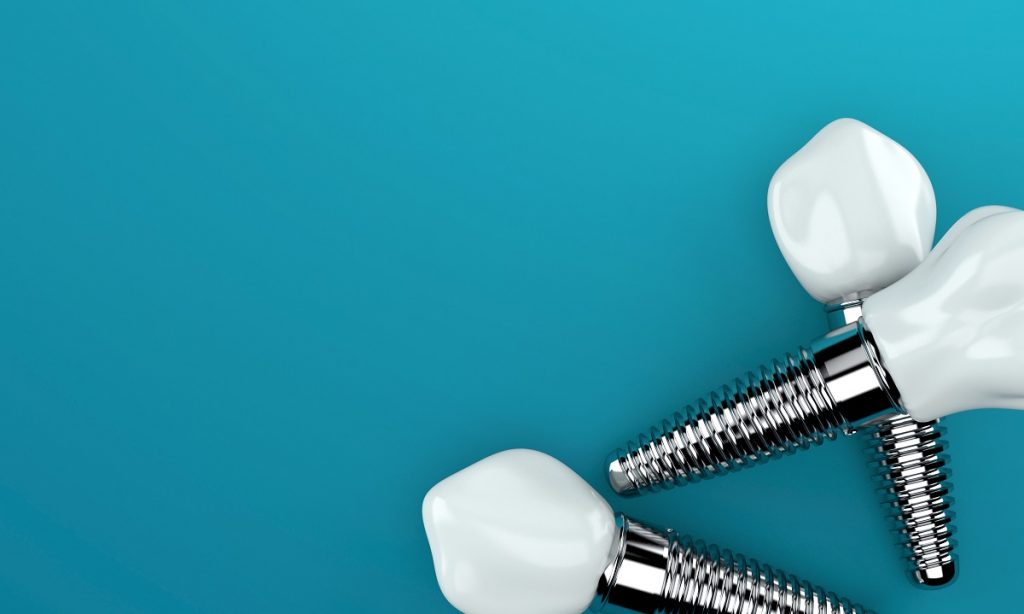 implants concept